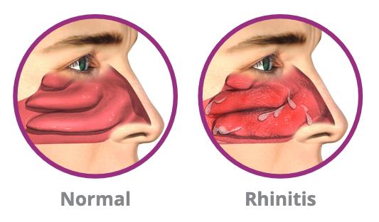 chronic rhinitis